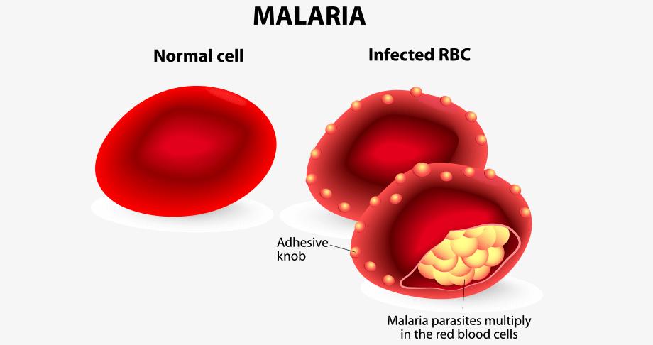 Infected RBC during Malaria